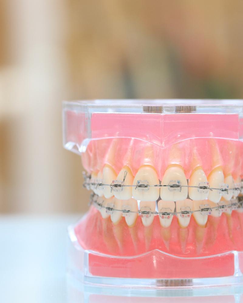 歯並びを綺麗に矯正治療